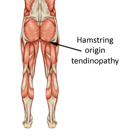 the hamstring origins where tendinopathy may occur