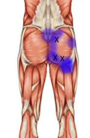 Gluteus maximus pain referral
