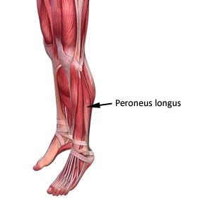 peroneal tendonitis